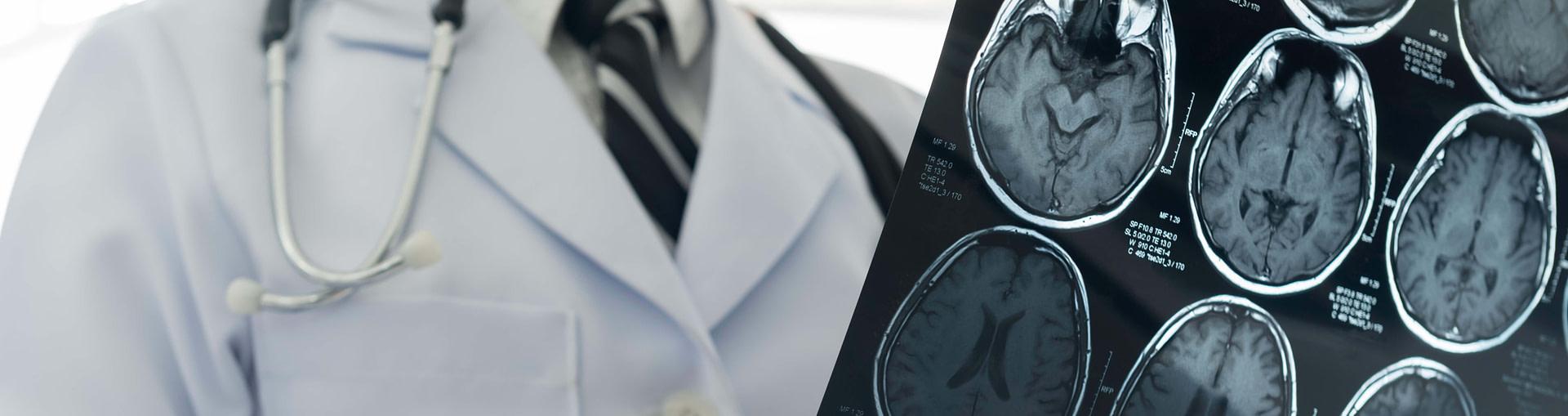Brain injury claims